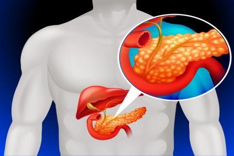 التهاب البنكرياس المزمن : أسبابه و أعراضه و علاجه