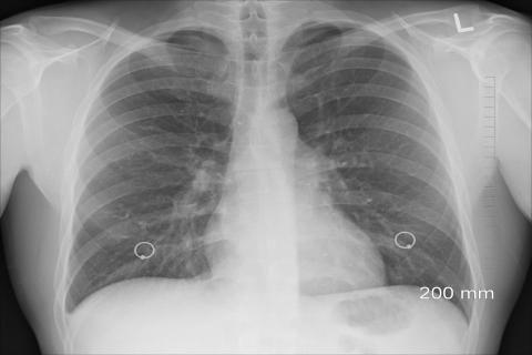 هل ماء الرئة يسبب الوفاة -صورة أشعة للرئة