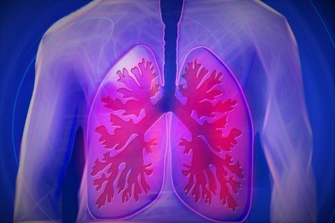 هل ماء الرئة يسبب الوفاة ؟
