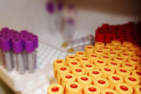 تحليل CRP -عينات دم