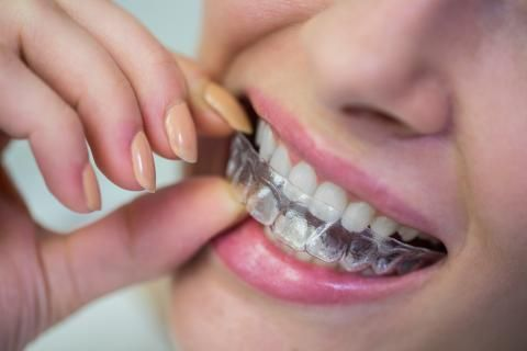 تقويم الأسنان الشفاف -شكل التقويم الشفاف
