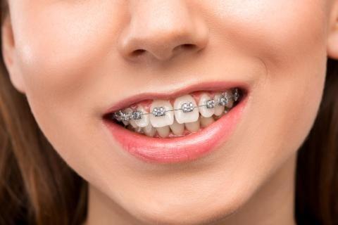 تقويم الأسنان :أنواعه وأسعاره ومميزات كل نوع