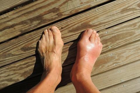 أفضل فوار للاملاح القدم -قدم رجل مصاب بالنقرس