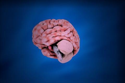 حقن ديبوفيت للعظام -شكل الدماغ