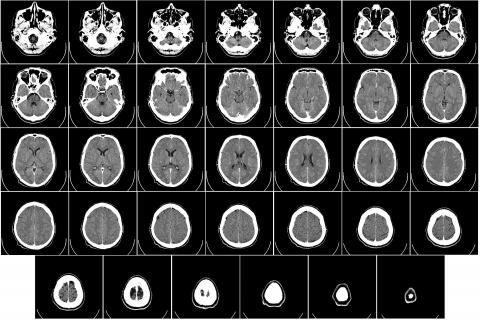 نزيف المخ عند الاطفال -أشعة للمخ
