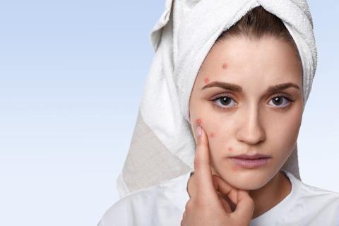 فتاة تعاني من حب الشباب تحتاج للعلاج بكريم اليكا
